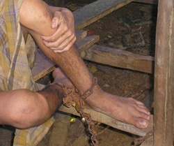Photo of Mental Health patient wearing chains.