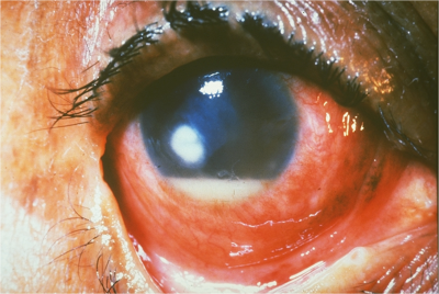 Supporative keratitis